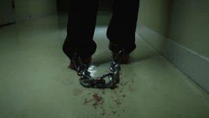足鎖につながれていました。足の皮膚が摩擦で破れました。